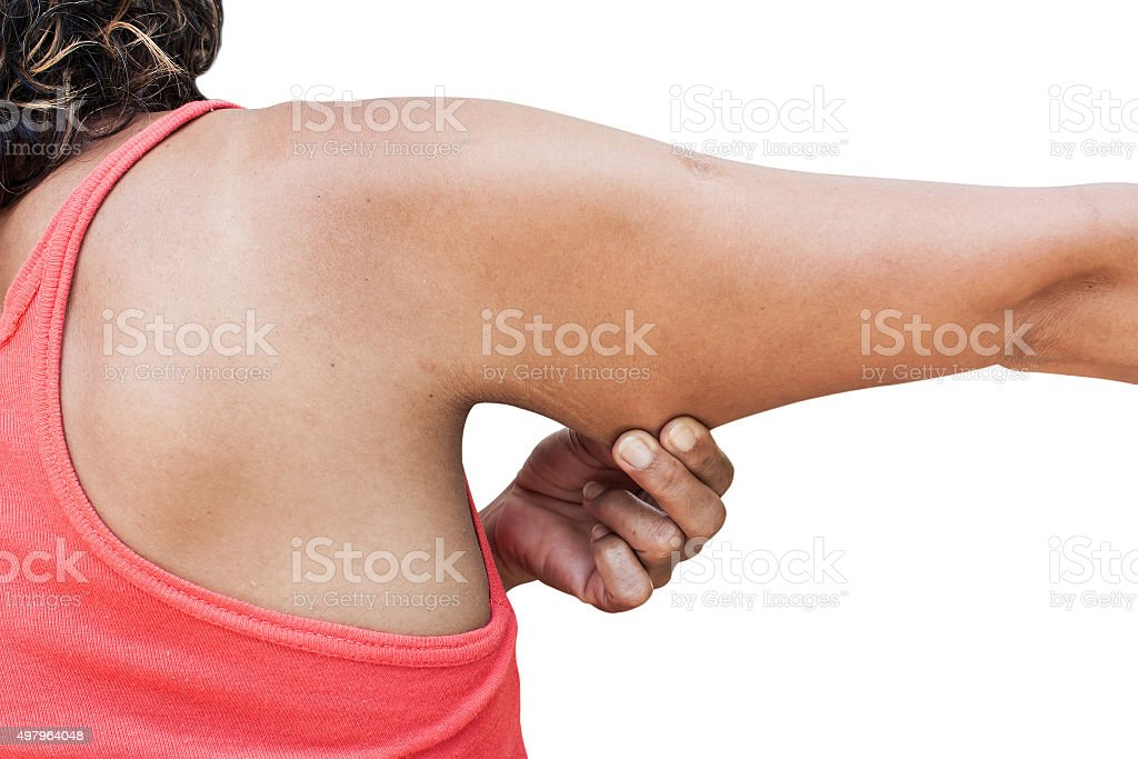 women show fat and scratch mark stock photo