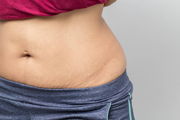 Women Show off the belly after birth. Stretch Marks on white background stock photo