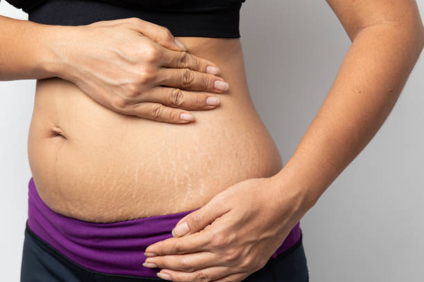 Women Show off the belly after birth. Stretch Marks on white background Women Show off the belly after birth. Stretch Marks on white background Stretch marks stock pictures, royalty-free photos & images