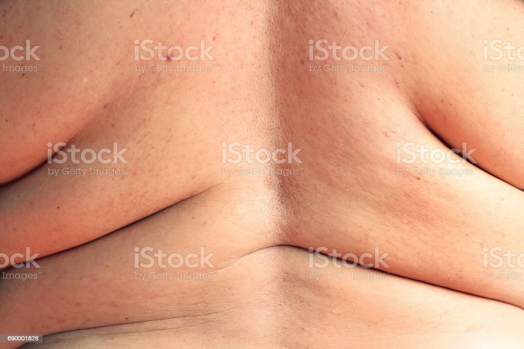 women shows excess fat of the back stock photo