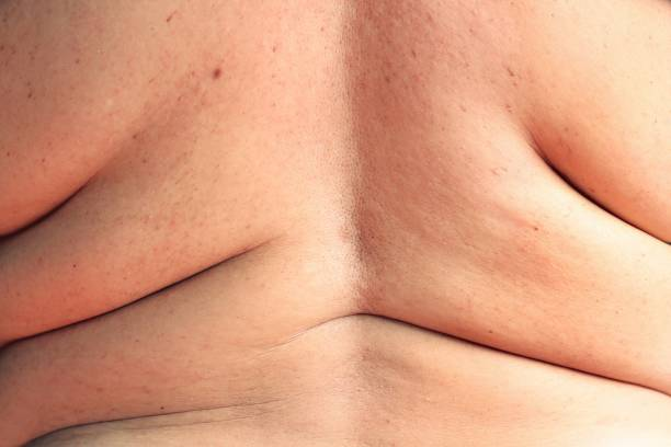 women shows excess fat of the back - menselijke rug stockfoto's en -beelden