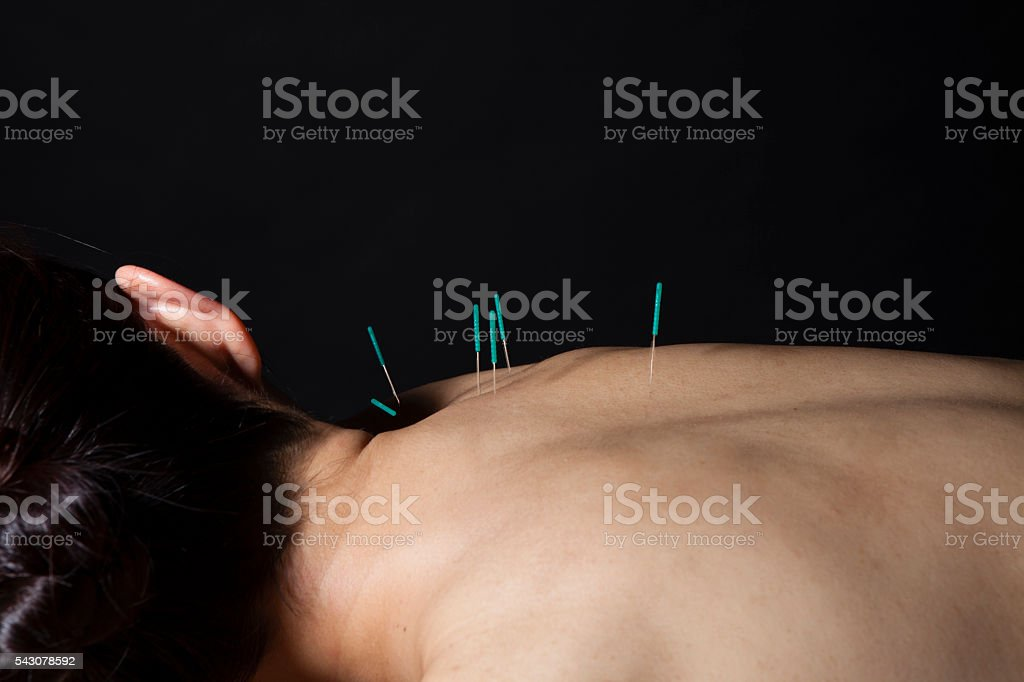 Women stabbed acupuncture on the back for sake of beauty stock photo