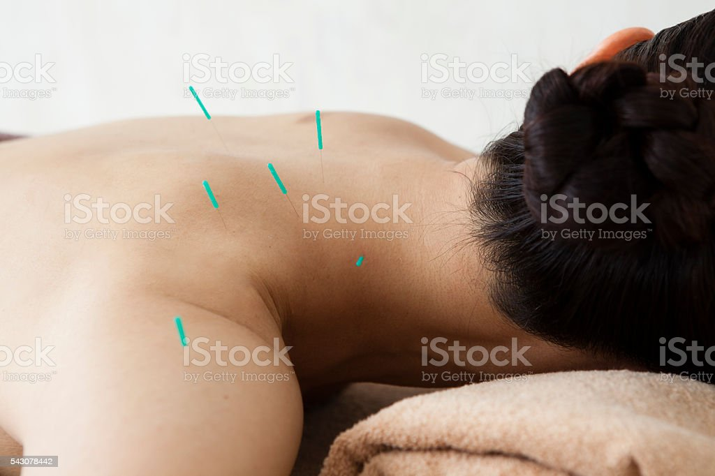 Women stabbed acupuncture on the body for the sake of health