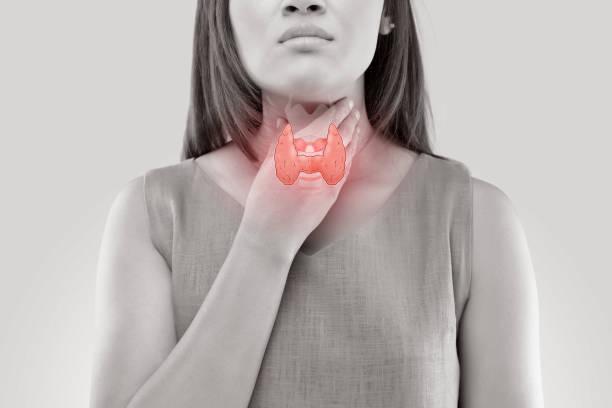 controle de glândula tireoide de mulheres. dor de garganta de um povo isolado no fundo branco. - cancer da tireoide - fotografias e filmes do acervo