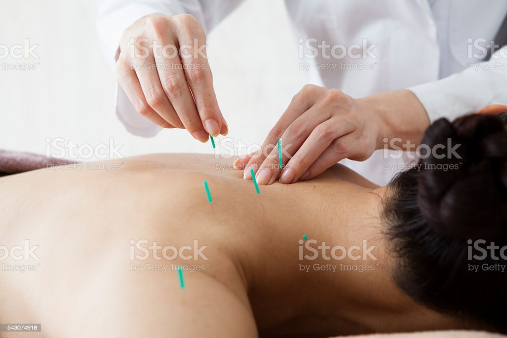 Women who are the back and acupuncture treatment at salon stock photo