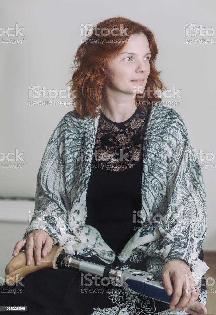 Amputiert single frauen Dating Amputee