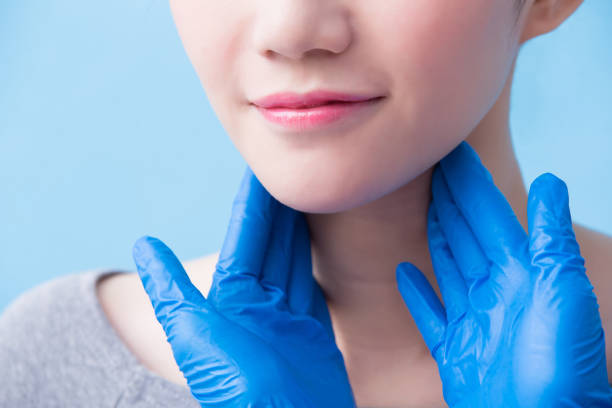 women with thyroid gland problem stock photo