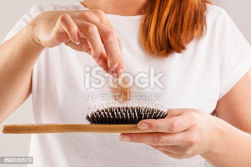 istock Women's Hair Loss. 896039574