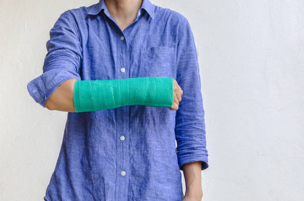 worker woman accident on arm with green cast. stock photo