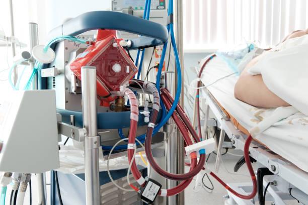 werkende ecmo machine in intensive care-afdeling - membraan stockfoto's en -beelden
