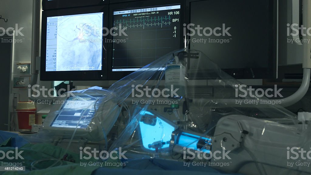 Working medical equipment in operating room during heart surgery stock photo