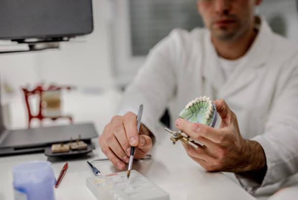 arbetar på keramik dentala implantat - protesutrustning bildbanksfoton och bilder