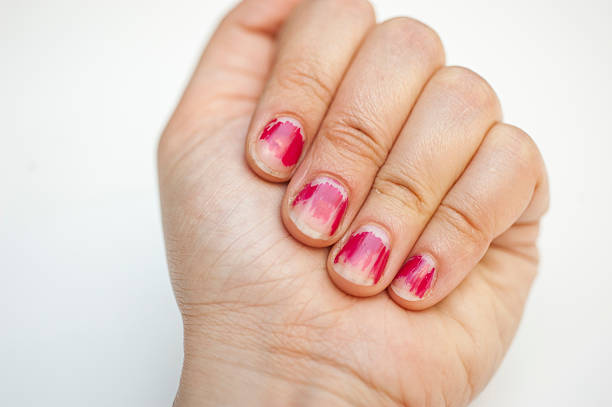worn off manicure - peeling off stock photos and pictures