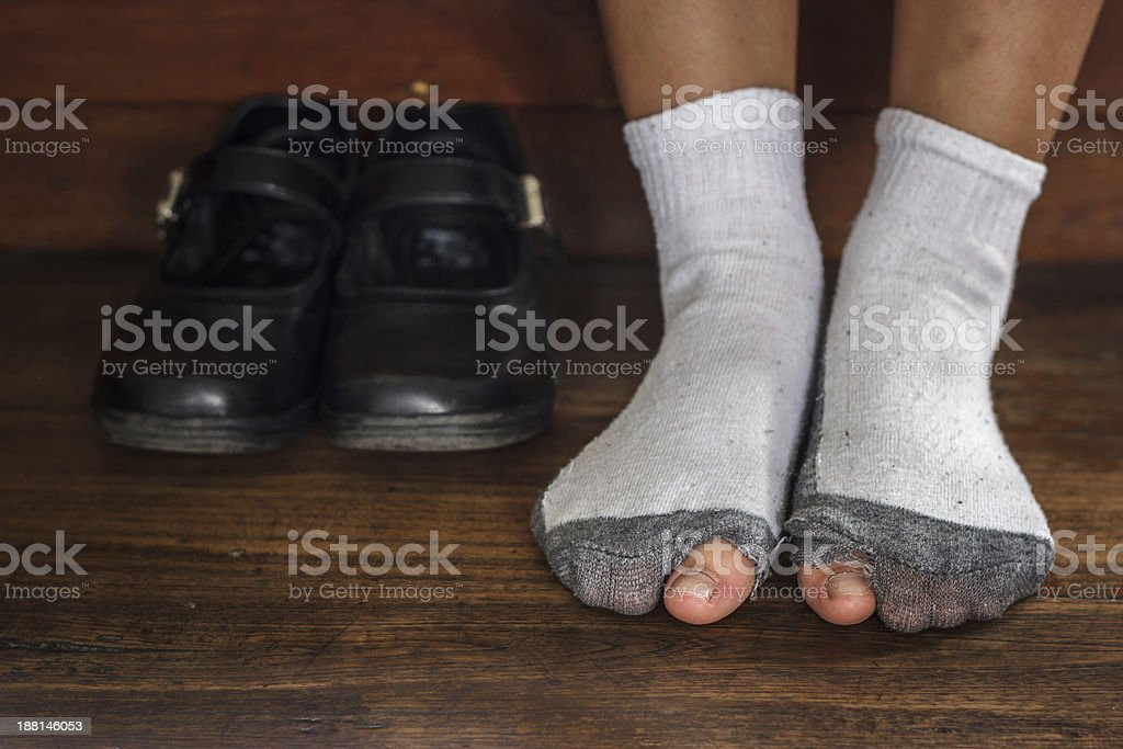 worn out dirty socks with a hole and toes. stock photo
