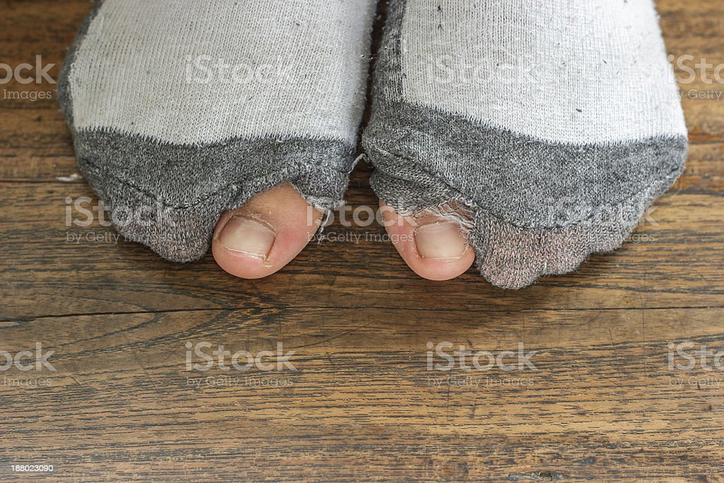 worn out socks with a hole and toes. stock photo