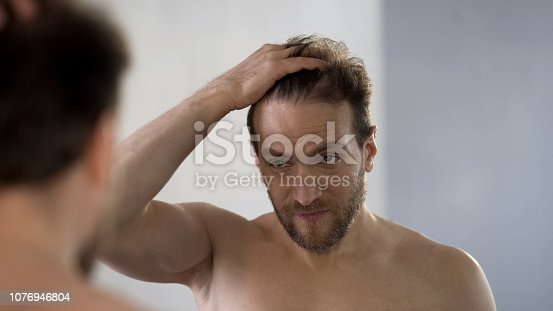 1162960006istockphoto Worried man looking in mirror at his bald patches, hair loss problem, hygiene 1076946804