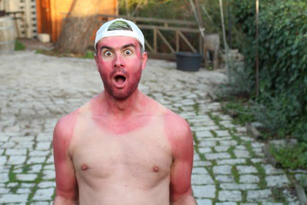 Homem preocupado queimado com irritação na pele - foto de acervo