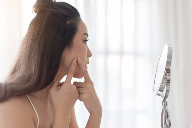 Worried Young girl of her acne. stock photo