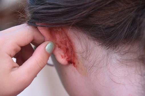 Sår på örat