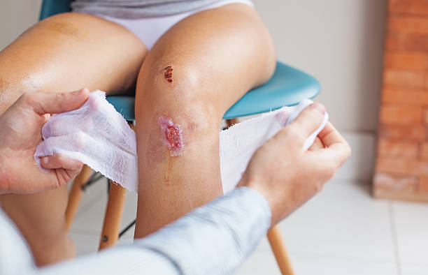 wound cleansing process in clinic stock photo