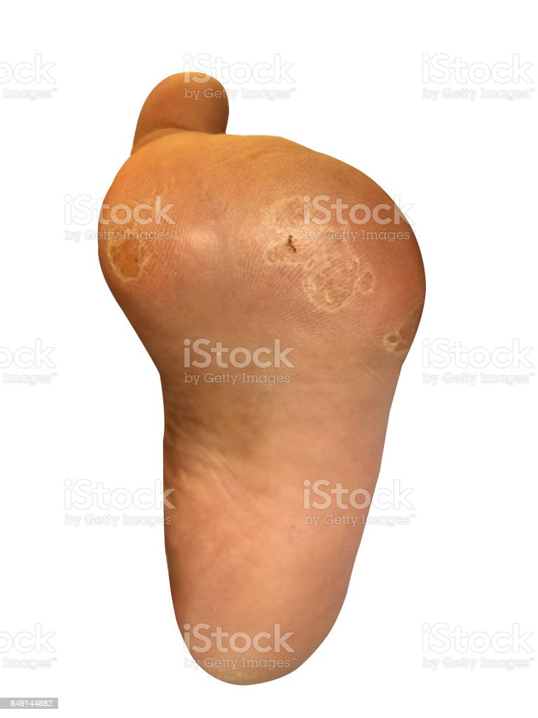 Wound Infection Burn on foot stock photo