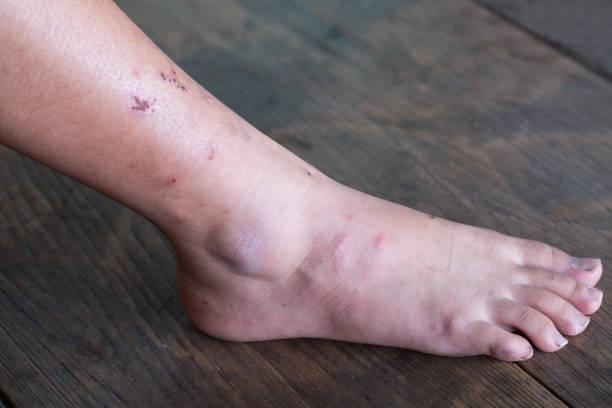 la herida de la pierna, el síndrome de pie diabético. - gangrena fotografías e imágenes de stock