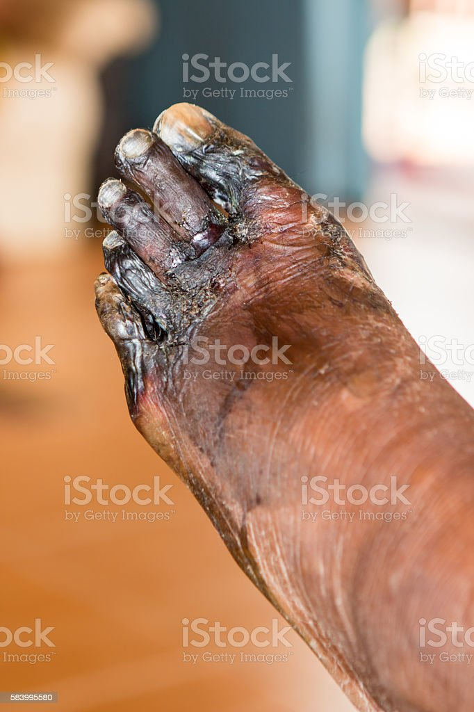 wound of diabetic foot stock photo