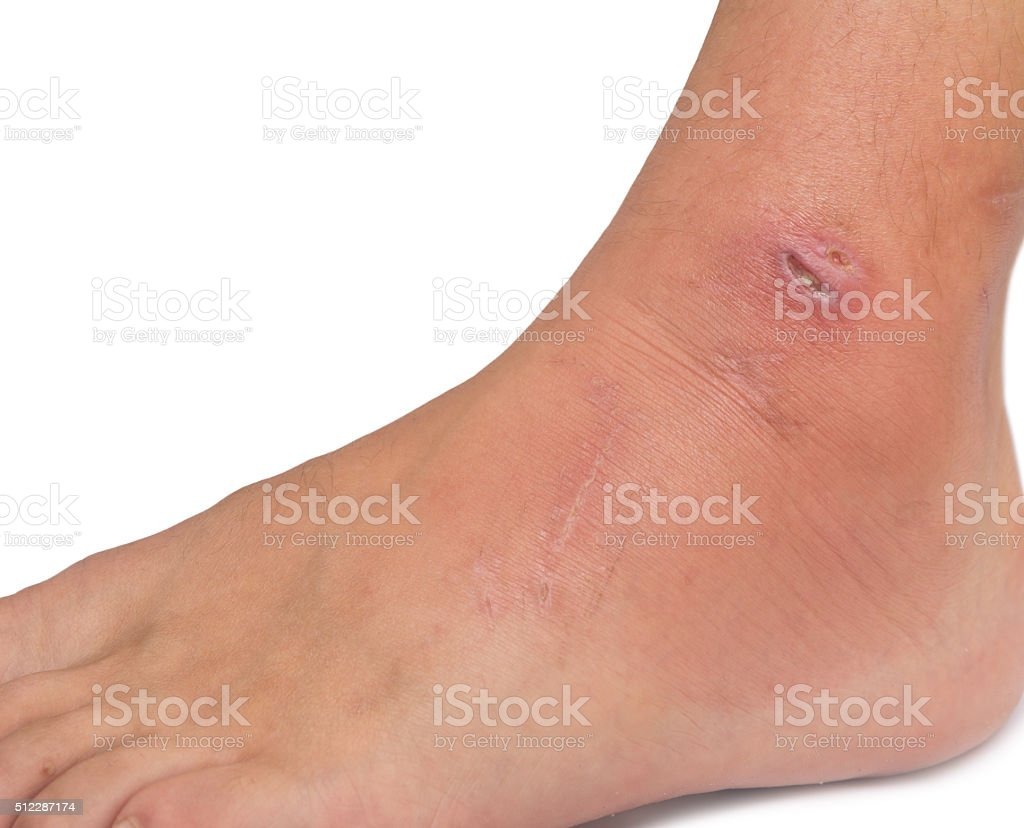 wound on foot stock photo