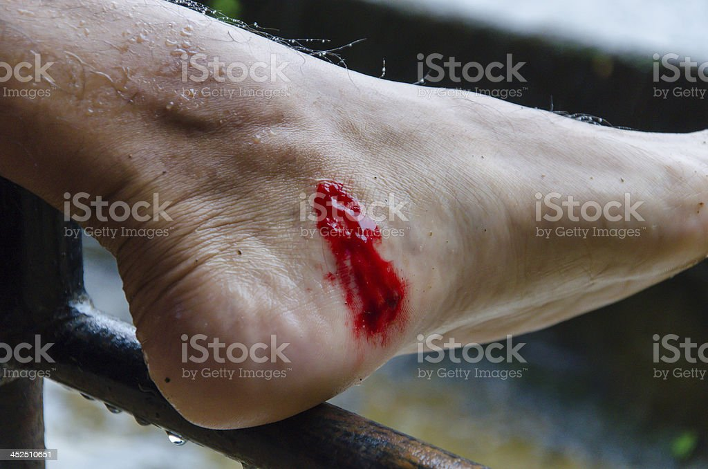 Wound on leech sucking blood from foot stock photo