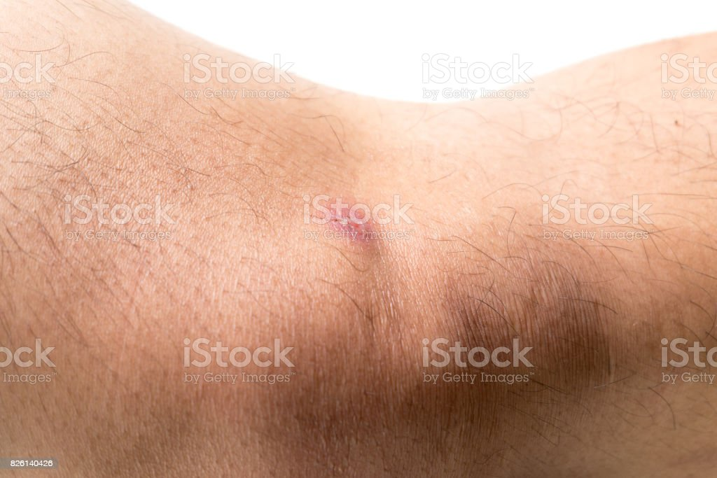 wound on skin. stock photo