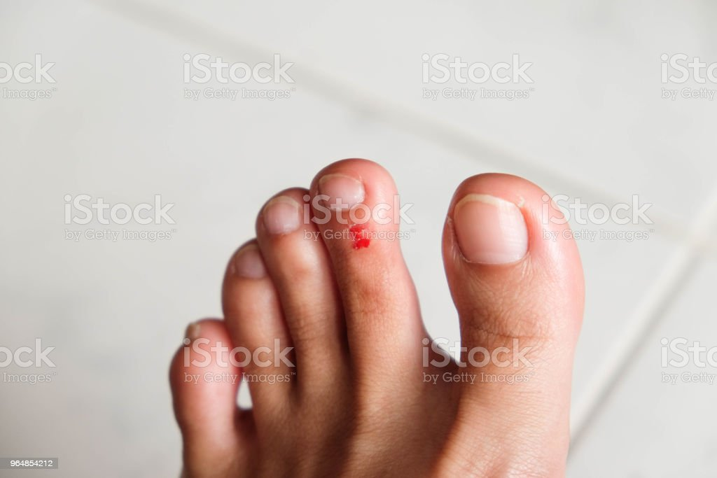 wound on the foot of a woman stock photo