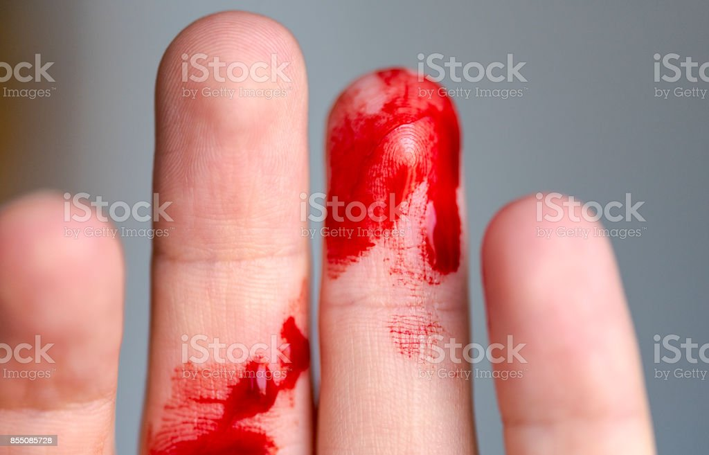 Wounded finger, arm with blood, bleeding stock photo