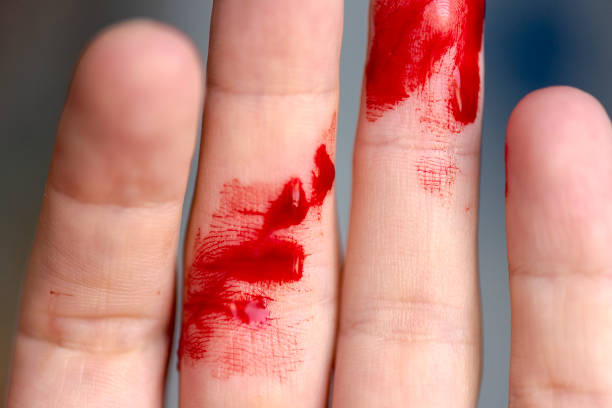 wounded finger, arm with blood, bleeding - knife wound stock photos and pictures