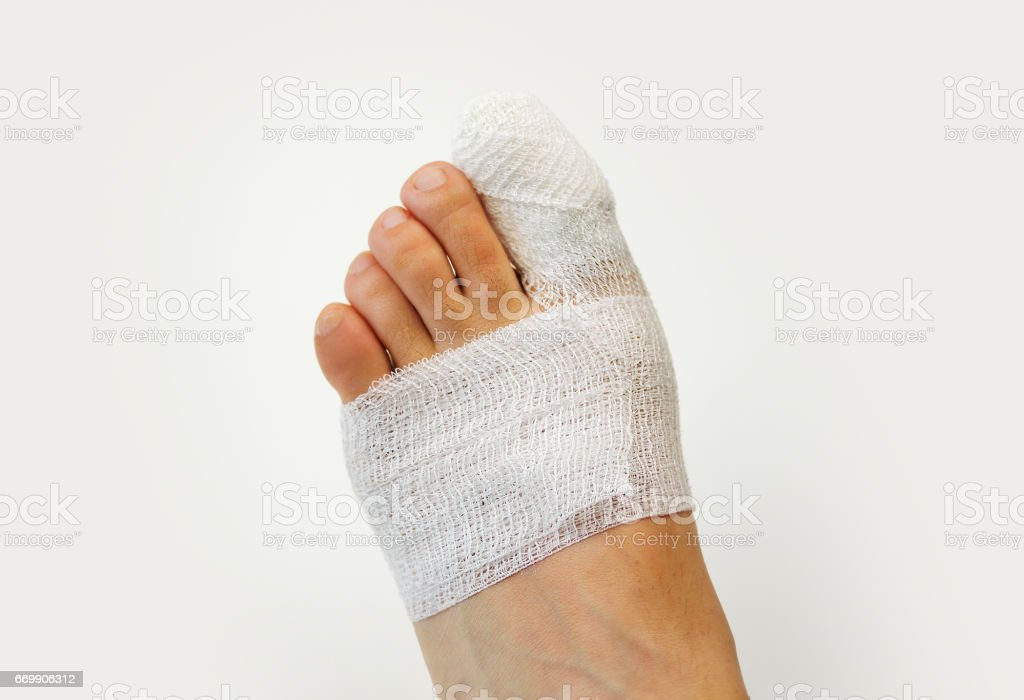 Wounded foot with bandages stock photo