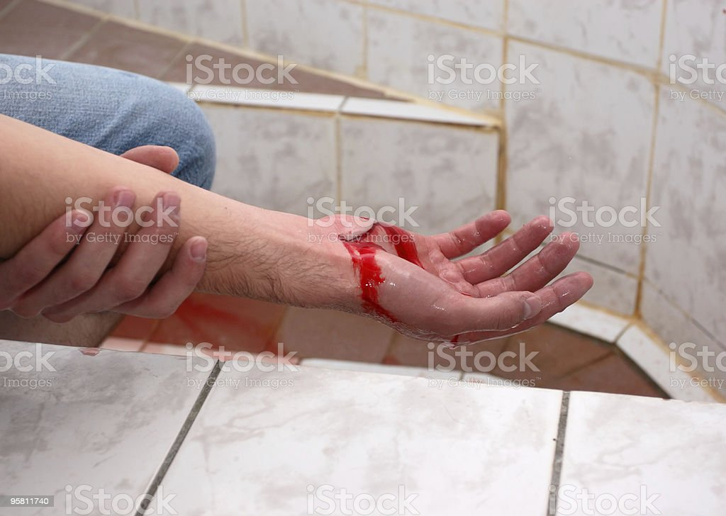 wounded hand royalty-free stock photo