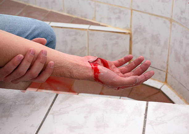 wounded hand stock photo