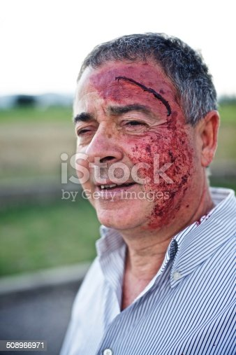 508966965 istock photo Wounded man 508966971
