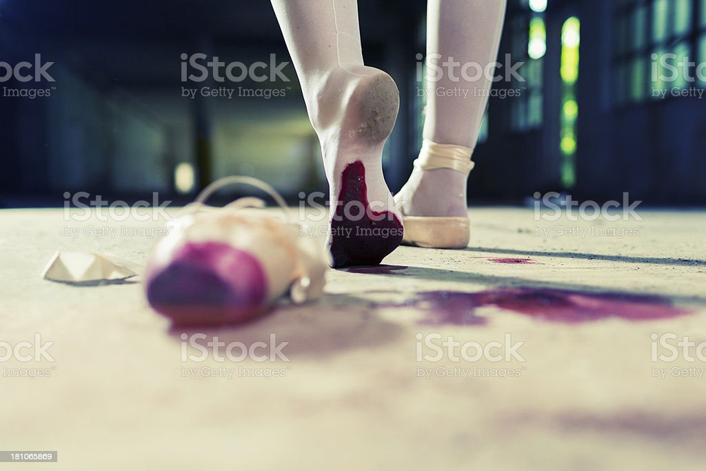 Wounded young ballet dancer walking away with injured foot stock photo