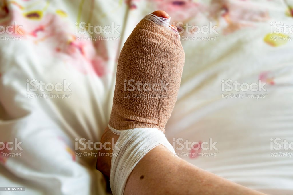 Bandaged foot a few hours after bunion and hammertoe surgery on the...