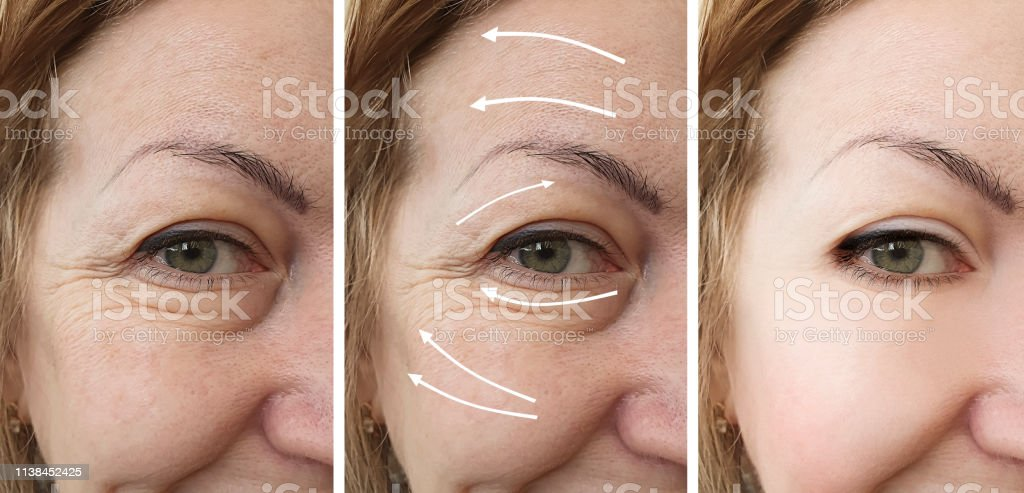 wrinkles of eyes before and after procedures collage, arrow stock photo