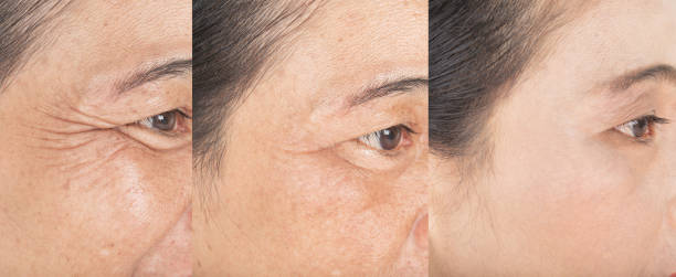 Wrinkles on the eyes.  and before and after stock photo