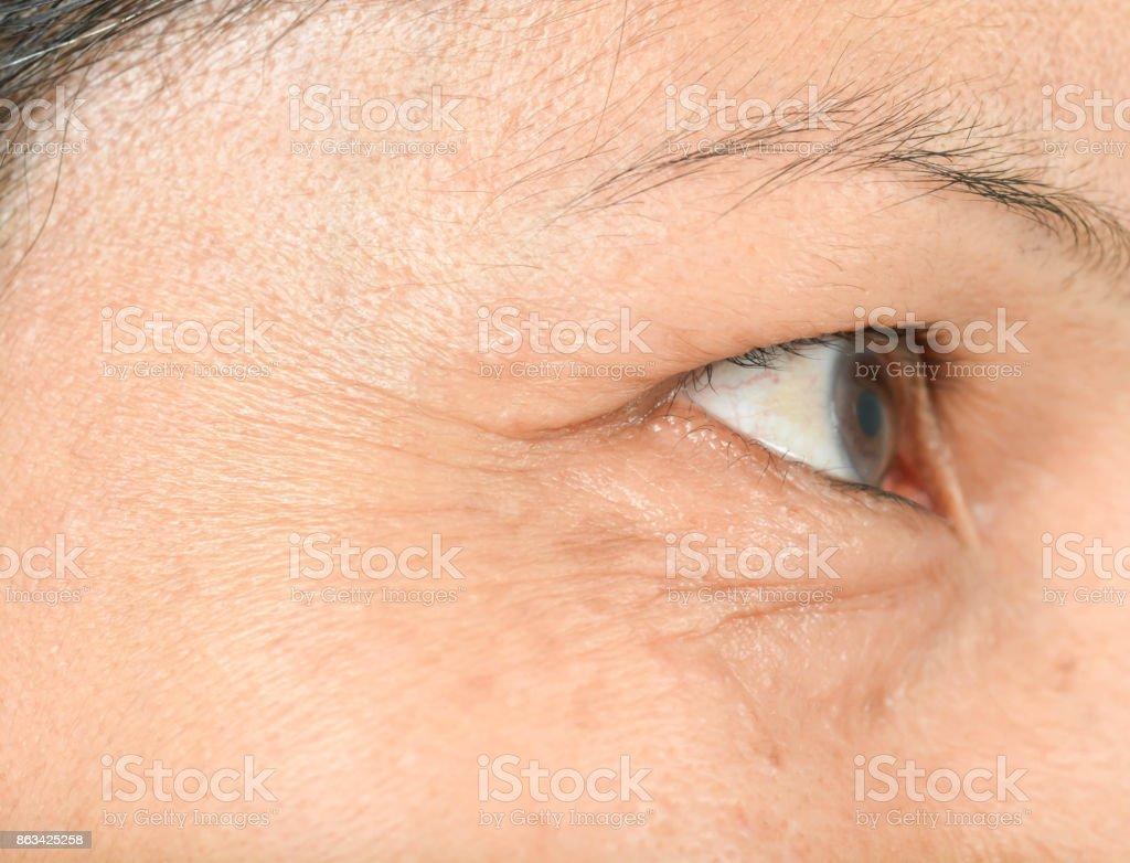 Wrinkles on the eyes stock photo
