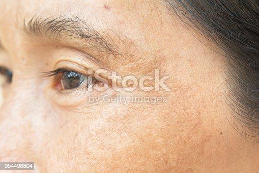 istock Wrinkles on the eyes 954496804