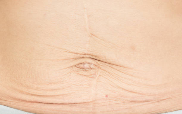 wrinkles Skin from pregnancy stock photo
