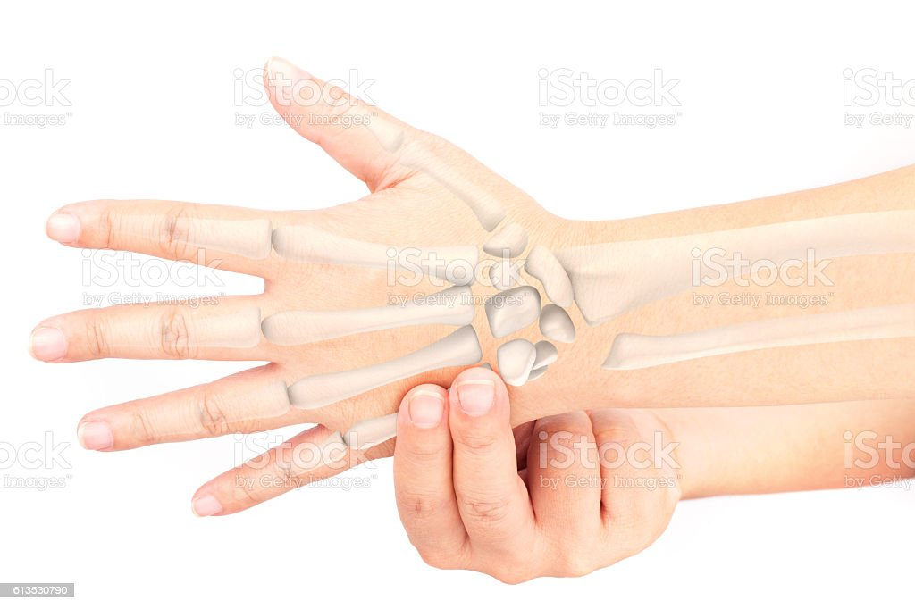 Wrist Bones Injury Stock Photo More Pictures Of Alternative