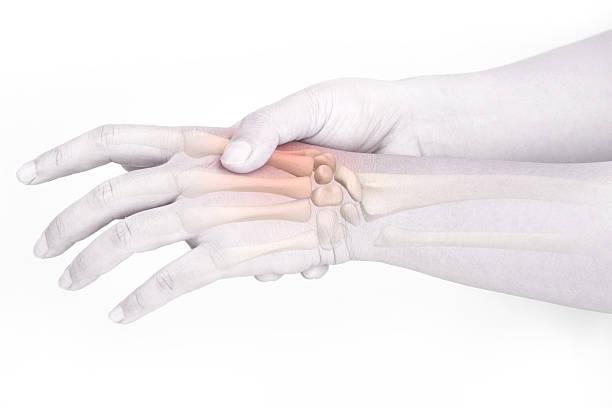 handgelenk knochen verletzungen - skelett hand stock-fotos und bilder