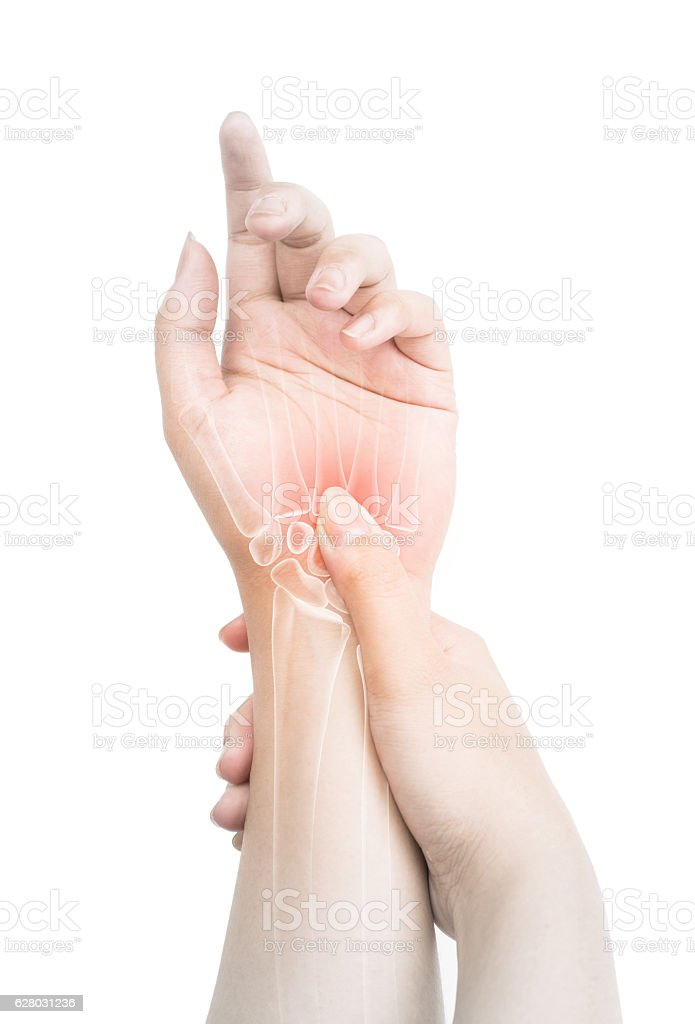 Wrist Bones Injury Stock Photo More Pictures Of Acute Angle Istock