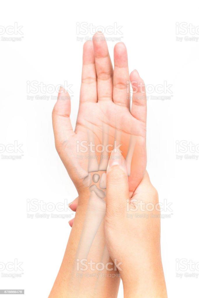 Handgelenk Knochen Verletzungen Stockfoto 878868476 | iStock
