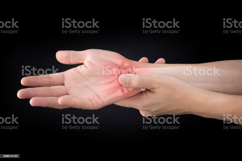 Wrist Bones Injury Stock Photo More Pictures Of Arthritis Istock