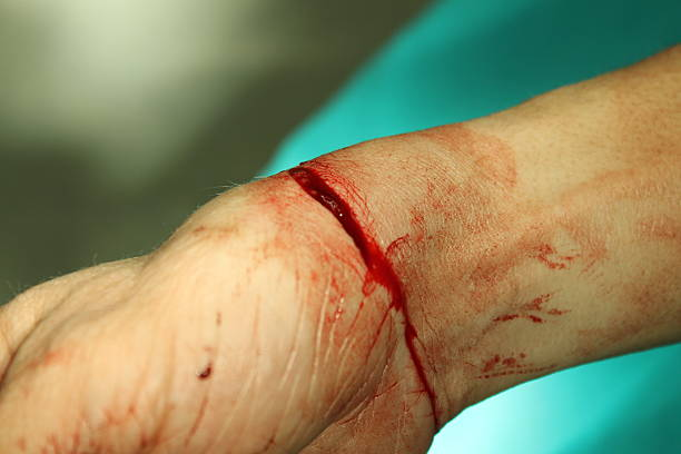 wrist cut stock photo